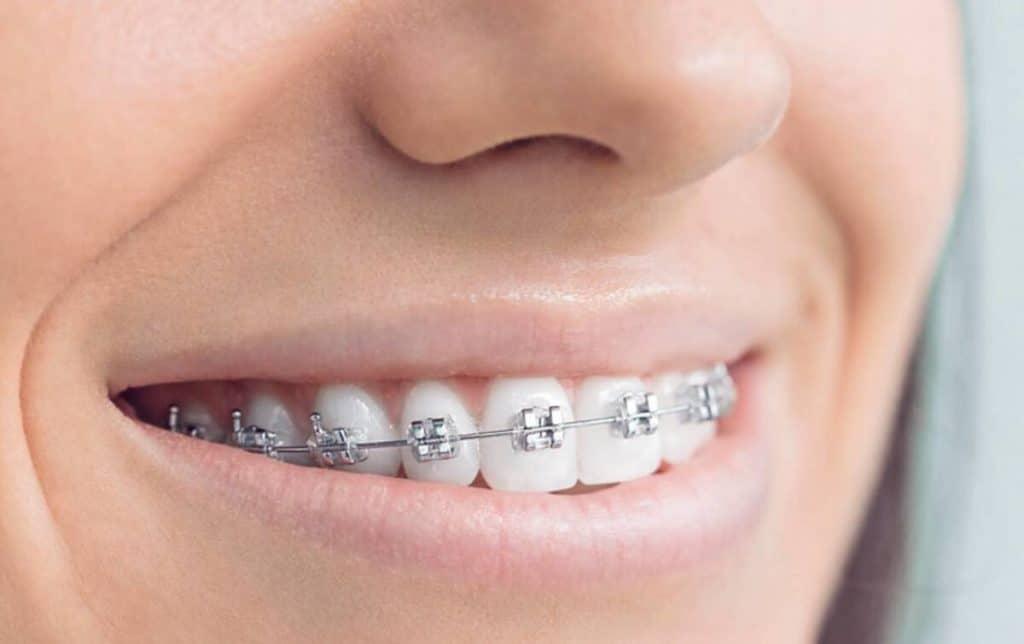 Ortodoncia, Implantes, Perno y Corona, Odontología avanzada: ¿Qué obras sociales son mejores? ¿Cuáles son planes médicos con mejor cobertura odontológica?