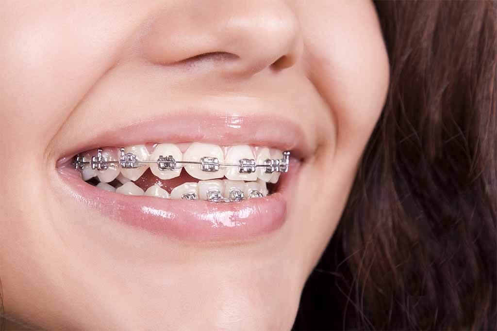 Tratamientos de Ortodoncia con tu cobertura médica