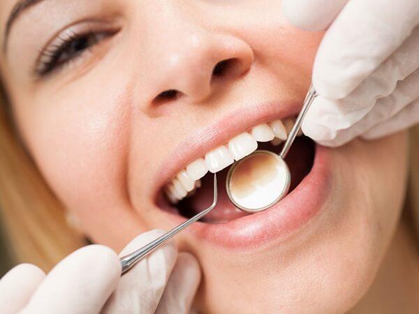 La limpieza bucal se debe incluir una vez al año