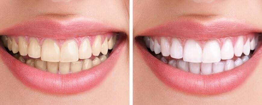 Tratamientos de blanqueo dental, precio, coberturas médicas y diferentes opciones